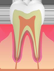 C0:ごく初期のむし歯