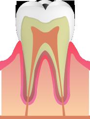 C1:歯の表面のむし歯