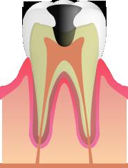 C3:神経まで進んだむし歯(歯髄まで侵される)