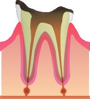 C4:歯が崩れた末期のむし歯(歯冠部まで侵される)